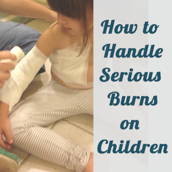 how to handle burns on children