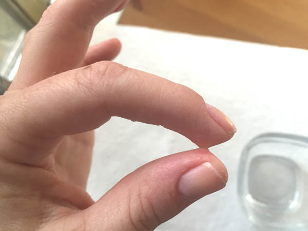 removing super glue from skin